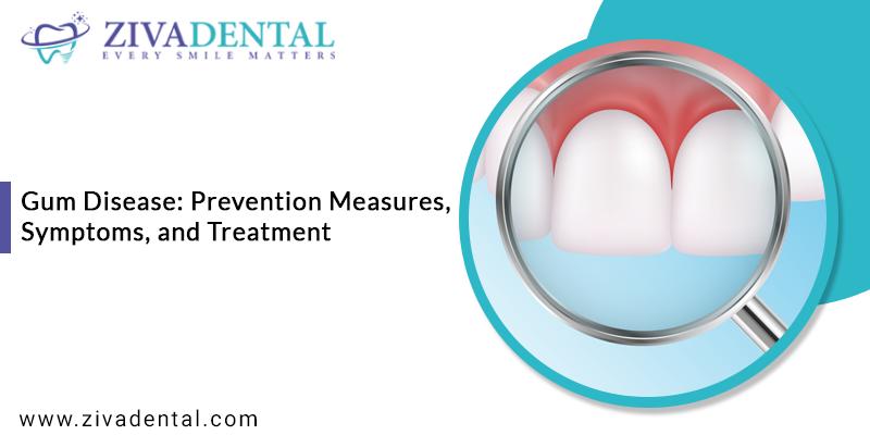 Gum Disease Treatment San Antonio