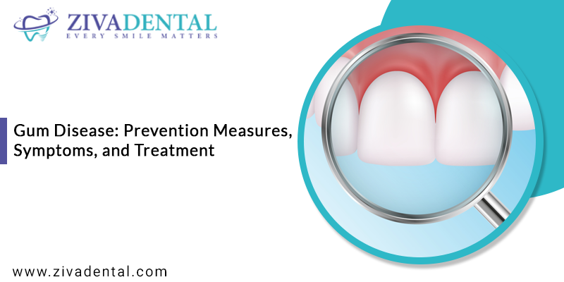 Gum Disease: Prevention Measures, Symptoms, and Treatment
