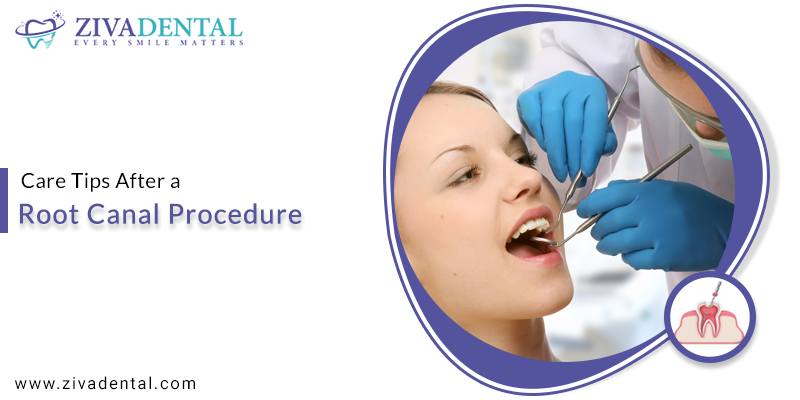 Care Tips after a Root Canal Procedure