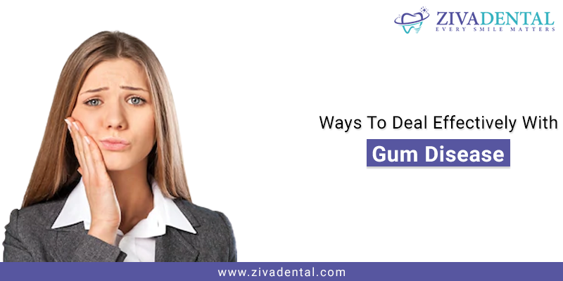 Gum Disease Treatment San Antonio
